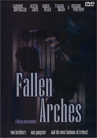 fallen arches surgery